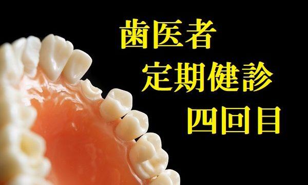 歯医者定期健診四回目