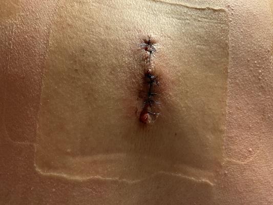 粉瘤手術痕