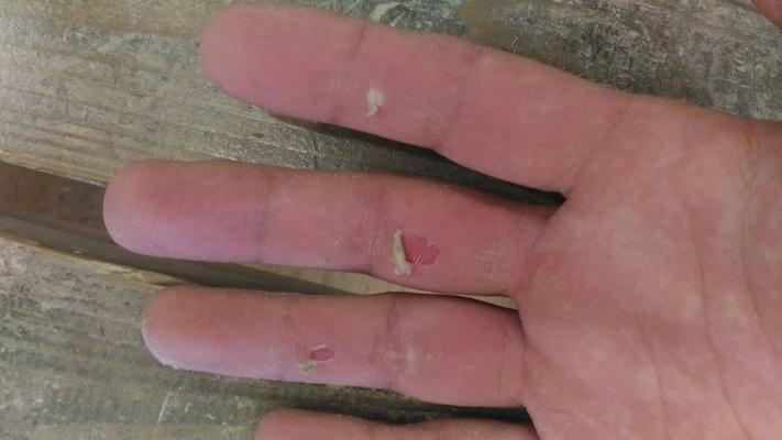 ボルダリング後の手